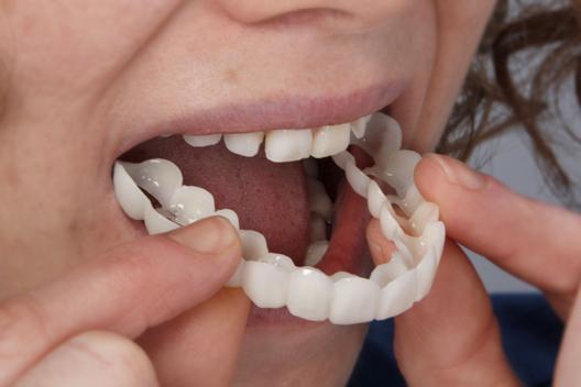 centro di implantologia dentale per i denti